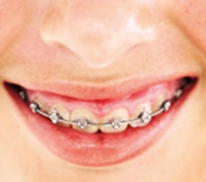 Malocclusion, orthodontic  treatment for children