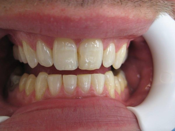 Aligner, invisibel orthodontic treatment